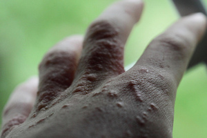 Stronger Poison Ivy with Higher Levels of Carbon Dioxide in the Atmosphere | OnEarth Magazine